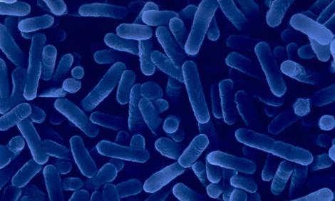 Legionnaires: An Epidemic?